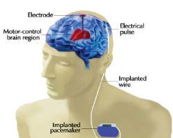 DBS-Implant