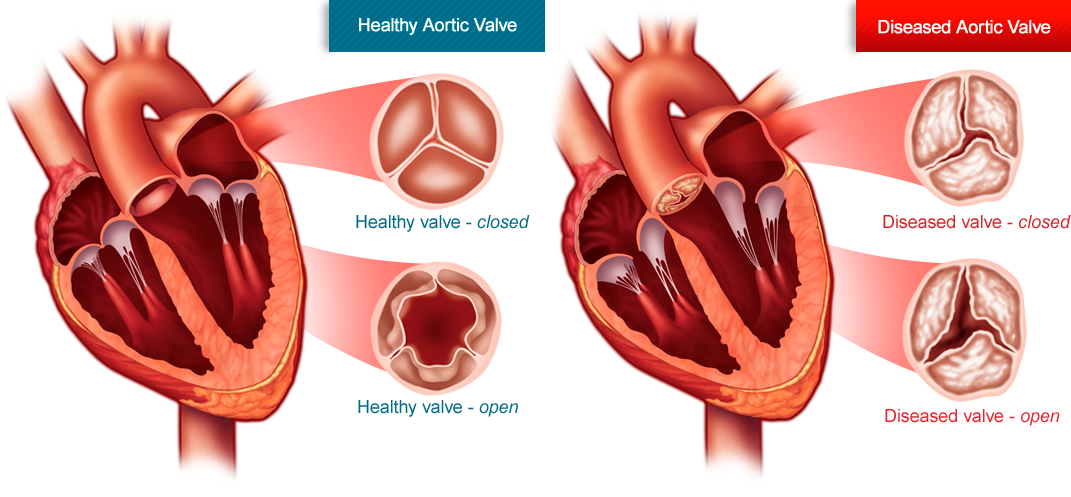 Aortic Stenosis and Surgical Treatment1