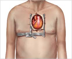 Aortic Stenosis and Surgical Treatment2