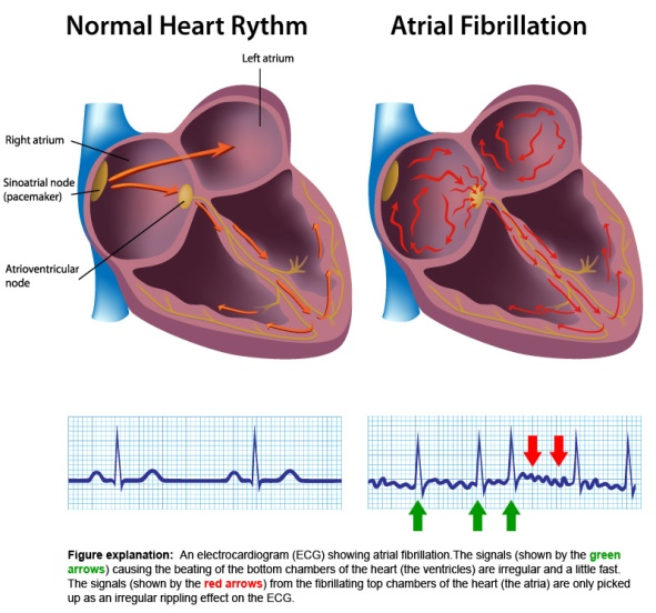 heart rhythms