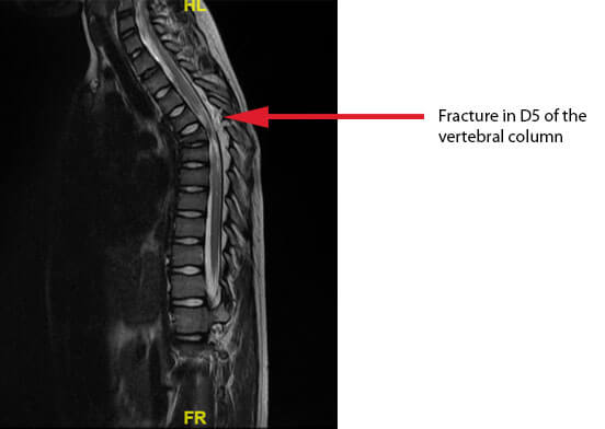 eric-spinal-cord-mri-D5-fracture